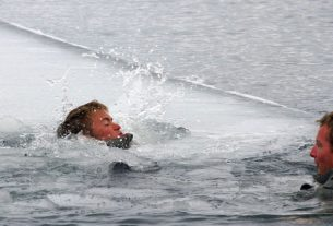 An Image Of A Person Suffering From Hypothermia.